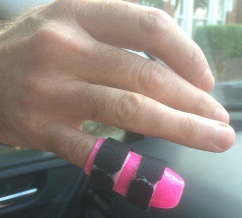 Chris Muldoon's broken finger